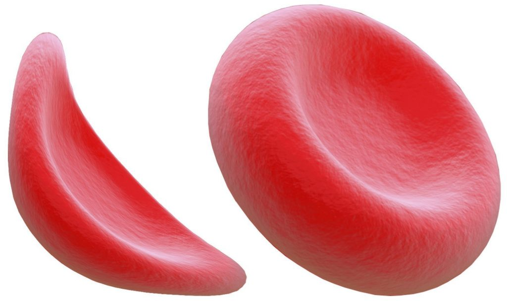 World Sickle Cell Day: FMC Begins free Genotype Screening, tackles sickle cell disease