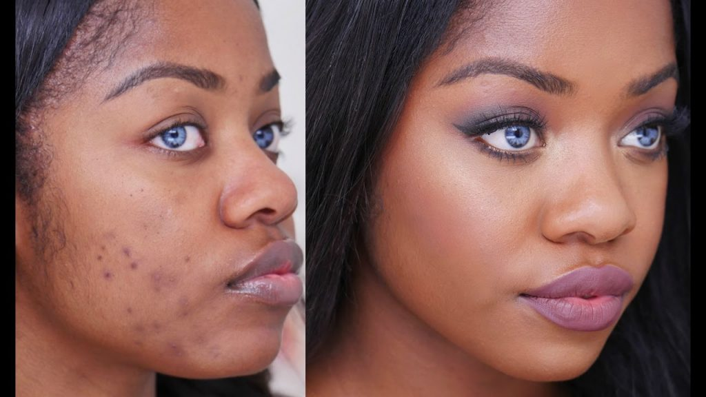 Simple Natural Remedies To Get Rid Of Skin Blemishes