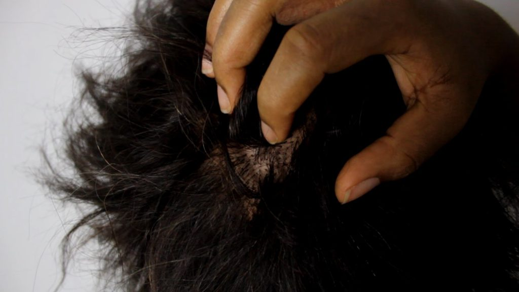 10 Home Remedies For An Itchy Scalp